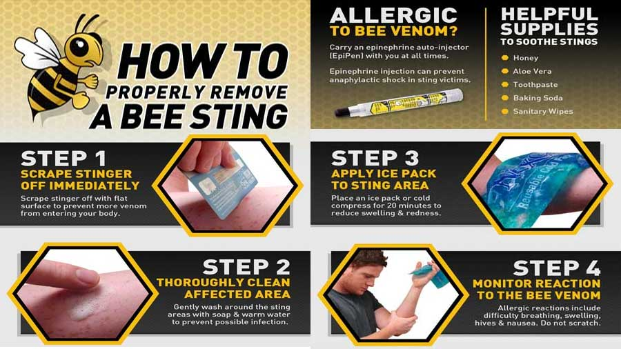 Infographic on the treatment of bee stings