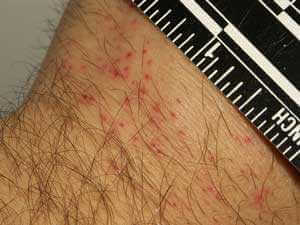 Small Bed Bug Bite Marks Close-Up Picture 6