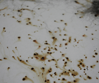Picture of flea dirt that you might find on a bed