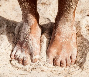 Image of a mans feet in the sand